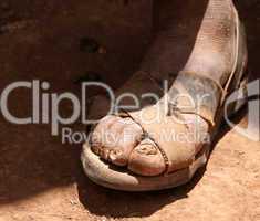 Alte Füße mit Sandalen