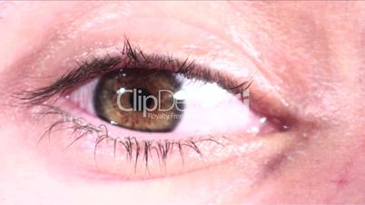 Contact lens applied to eye