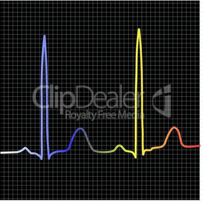 EKG Wellen