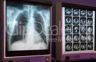 Röntgenbilder Radiograph