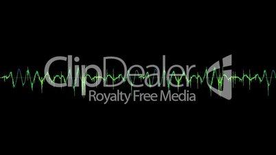 LP Pops and Crackes Tone Arm noise 2