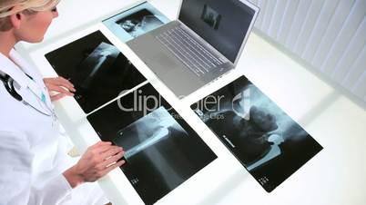 Ärztin mit den Röntgenbildern