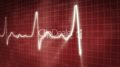 EKG electrocardiogram pulse trace