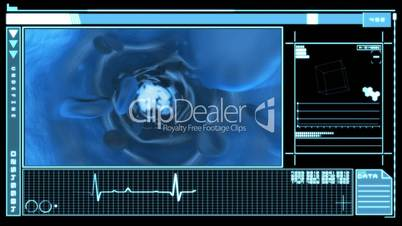 Medical digital interface showing bloodflow