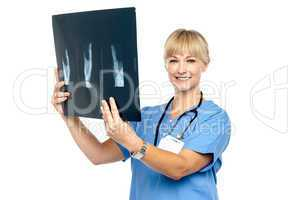Lady surgeon holding up x-ray report