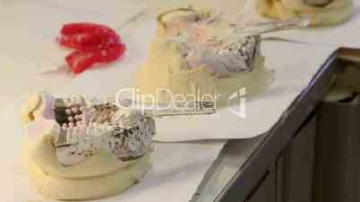 Dental impressions and molds of patient teeth in dentist studio