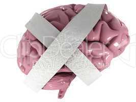 Dementia disease and a loss of brain function and memories as al