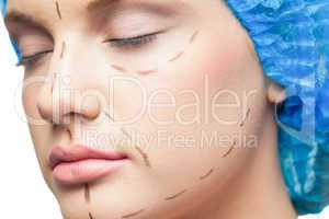Close up on gorgeous young patient with dotted lines on the face