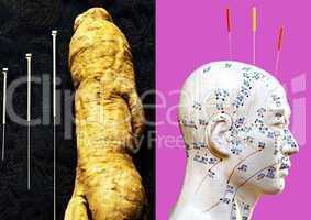 akupunkturnadeln, ginsengwurzel und kopfmodell