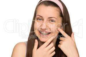 smiling girl with braces squeezing pimple isolated