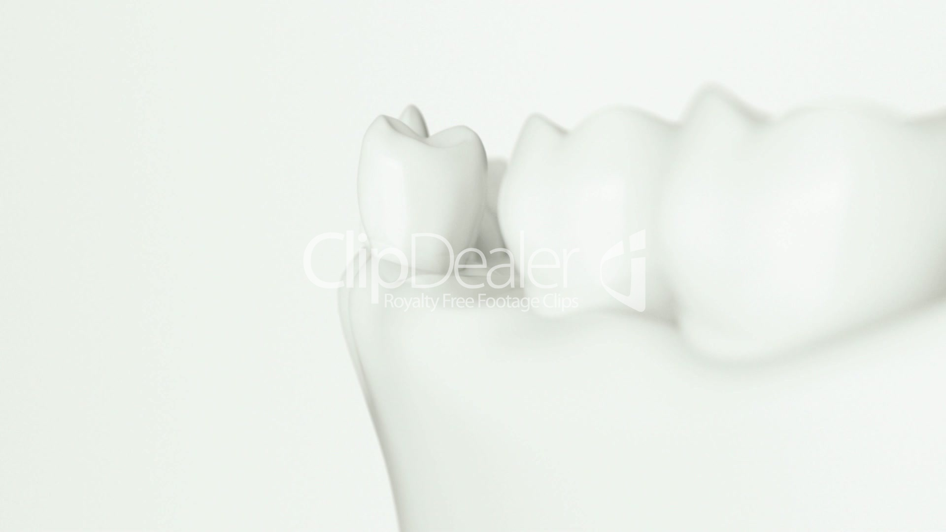 dental implant animation: Royalty-free video and stock footage