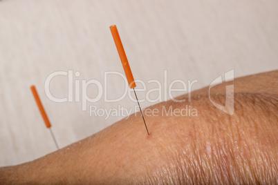 Akupunktur Behandlung