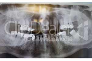Röntgenaufnahme eines menschlichen Kiefers.