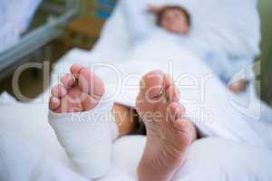 Patient with broken leg in a plaster cast