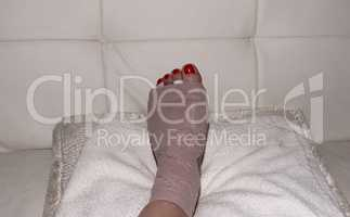 Foot after Morton's neuroma surgery