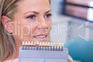 Tooth whitening equipment by smiling patient at medical clinic