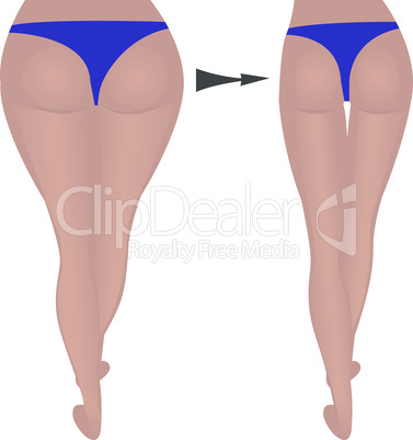 buttocks weight loss. Fat and slim. before and after