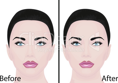 Young and aging face wrinkles treatment facial lifting cosmetology procedure before and after skincare vector illustration