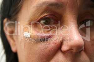Häusliche Gewalt
