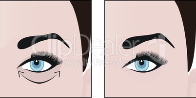 Dark circles under eyes to remove. Vector illustration