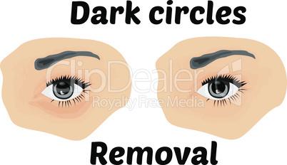 Dark circles under eyes to remove. Vector illustration